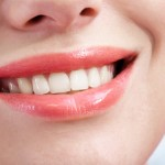 Porcelain veneers – tidy up your smile