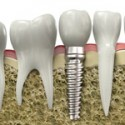 Dental Implants, Are They A Good Option For Missing Teeth?